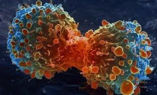image_cancer_1-1